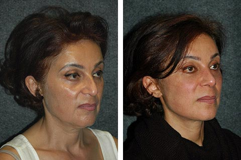 best facelift surgeon in the middle east dr jacono