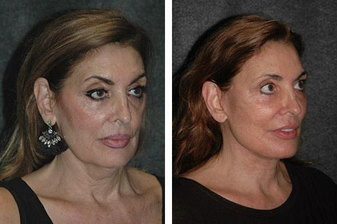 best facelift surgeon in the world after results