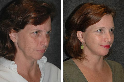 best facelift surgeon in the world photos