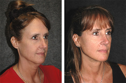 best new york facelift specialist