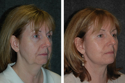 deep plane facelift before after photos