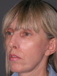 Facelift - Patient 22 - Obl Left - After