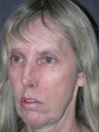 Facelift - Patient 22 - Obl Left - Before