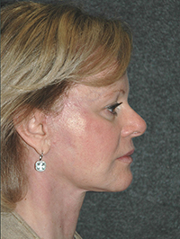 Facelift - Patient 11 - Lateral Right - After