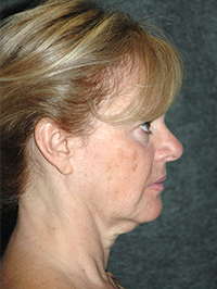 Facelift - Patient 11 - Lateral Right - Before