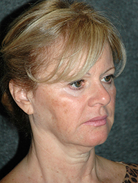 Facelift - Patient 11 - Obl Right - Before