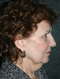Facelift - Patient 9 - Lateral Right - Before