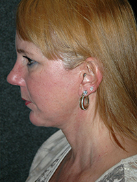 Facelift - Patient 12 - Lateral Left - After