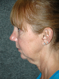 Facelift - Patient 12 - Lateral Left - Before