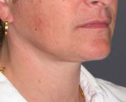 Facelift - Patient 40 - Obl Right - After