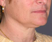 Facelift - Patient 40 - Obl Right - Before