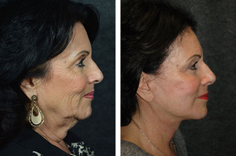 new york facelift patient before after photos