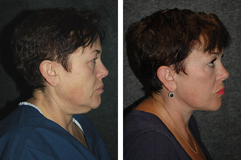 new york facelift patient before and after
