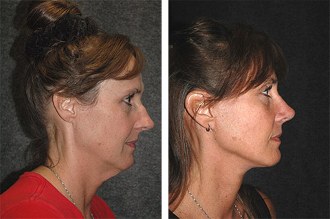 new york facelift specialist