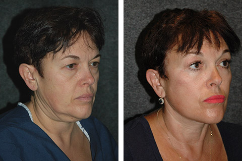 nyc facelift patient before and after