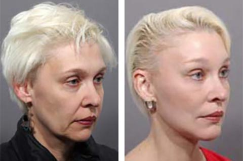 worlds best facelift surgeon photos