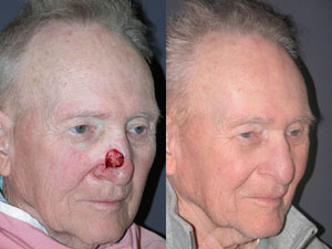 FACIAL RECONSTRUCTION - Patient 17