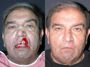 FACIAL RECONSTRUCTION - Patient 25