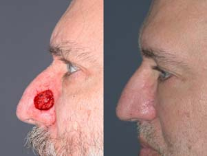 FACIAL RECONSTRUCTION - Patient 30