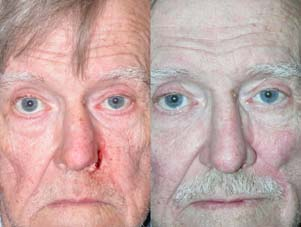 FACIAL RECONSTRUCTION - Patient 23