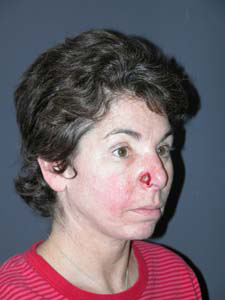 FACIAL RECONSTRUCTION - Patient 11 - Before