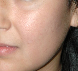 FRAXEL LASER RESURFACING - Patient 2 - After