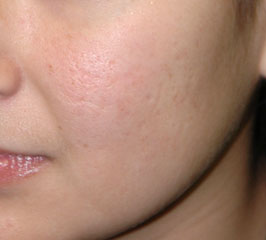 FRAXEL LASER RESURFACING - Patient 2 - Before