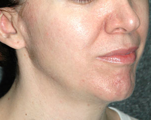 FRAXEL LASER RESURFACING - Patient 1 - After