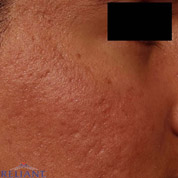 FRAXEL LASER RESURFACING - Patient 3 - After