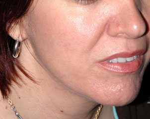 FRAXEL LASER RESURFACING - Patient 1 - Before