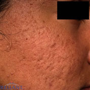 FRAXEL LASER RESURFACING - Patient 3 - Before