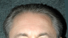 Hair Transplants - Patient 1 - Before