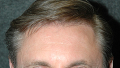Hair Transplants - Patient 1 - After