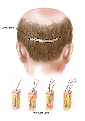 Hair Transplants NYC