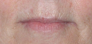 Laser Resurfacing - Patient 1 - Before