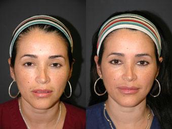 Lip Augmentation - Patient 7