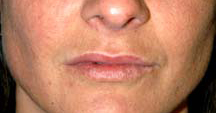 Lip Augmentation - Patient 2 - After