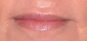 Lip Augmentation - Patient 6 - After