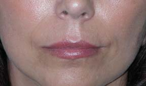 Lip Augmentation - Patient 4 - After