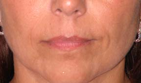 Lip Augmentation - Patient 4 - Before