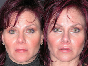 Lip Augmentation - Patient 5