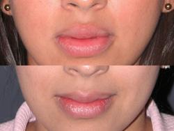 Lip Augmentation - Patient 9