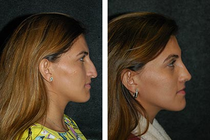 Before and After Rhinoplasty Recovery Photos