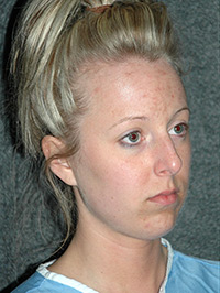 Rhinoplasty - Patient - Obl Right - Before