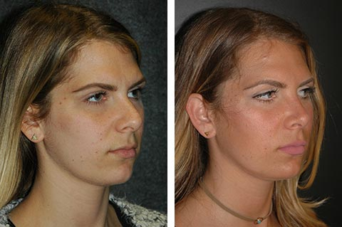 Best Rhinoplasty Surgeon Closed Rhinoplasty NYC