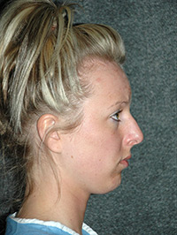 Rhinoplasty - Patient - Lateral Right - Before
