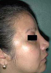 Rhinoplasty - Patient 46 - Lateral Right - After