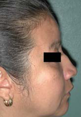 Rhinoplasty - Patient 46 - Lateral Right - Before