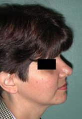 Rhinoplasty - Patient 45 - Lateral Right - After