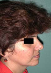 Rhinoplasty - Patient 45 - Lateral Right - Before